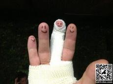 受伤的手指