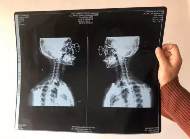 一网友去看颈椎拍片子,结果大夫把她的眼镜和牙套都拍上了,笑到肚子疼哈哈哈哈哈哈